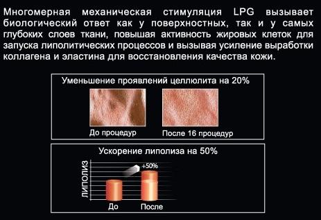 Lipomassage_1