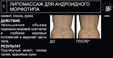 Lipomassage_2